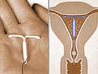 ВМС – внутриматочная спираль делает аборт
